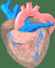 Tumori cardiaci mixomi